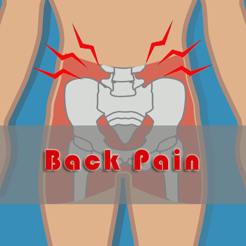 graphic of hip and back area indicating extreme pain